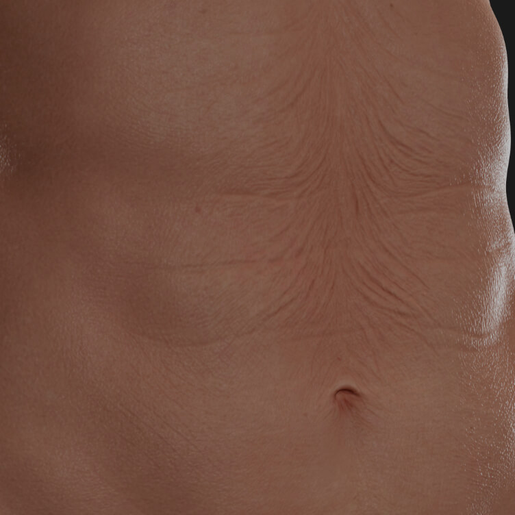 Clinique Chloé female patient's abdomen showing skin laxity to be treated with the Tight Sculpting laser for skin tightening