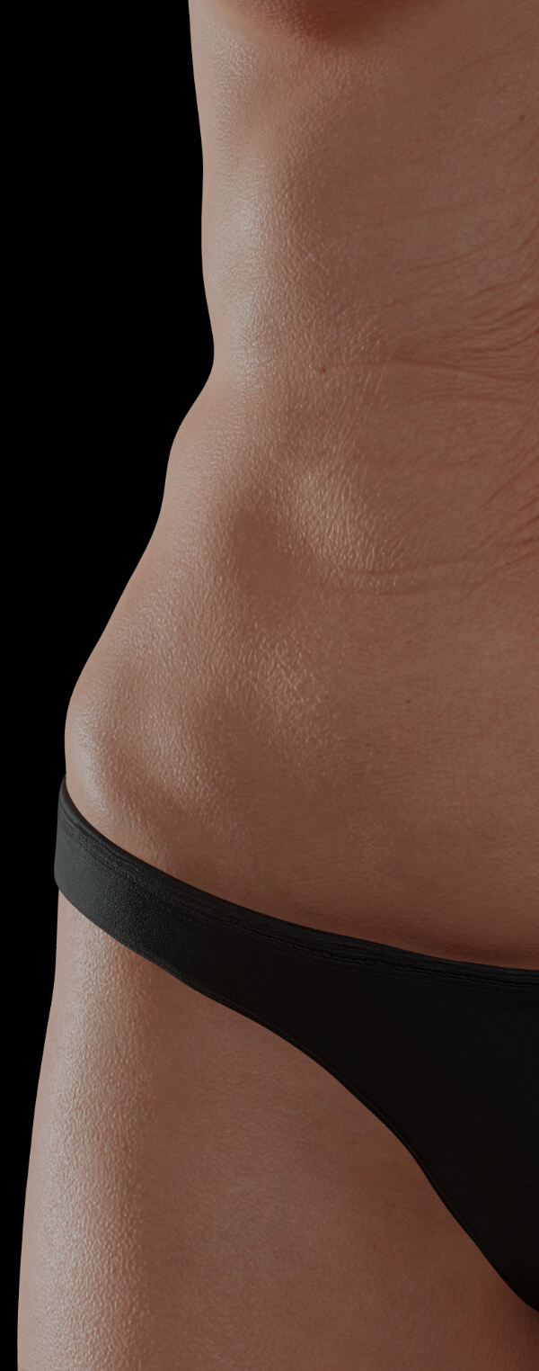 Female patient at Clinique Chloé with body skin laxity looking for body skin tightening