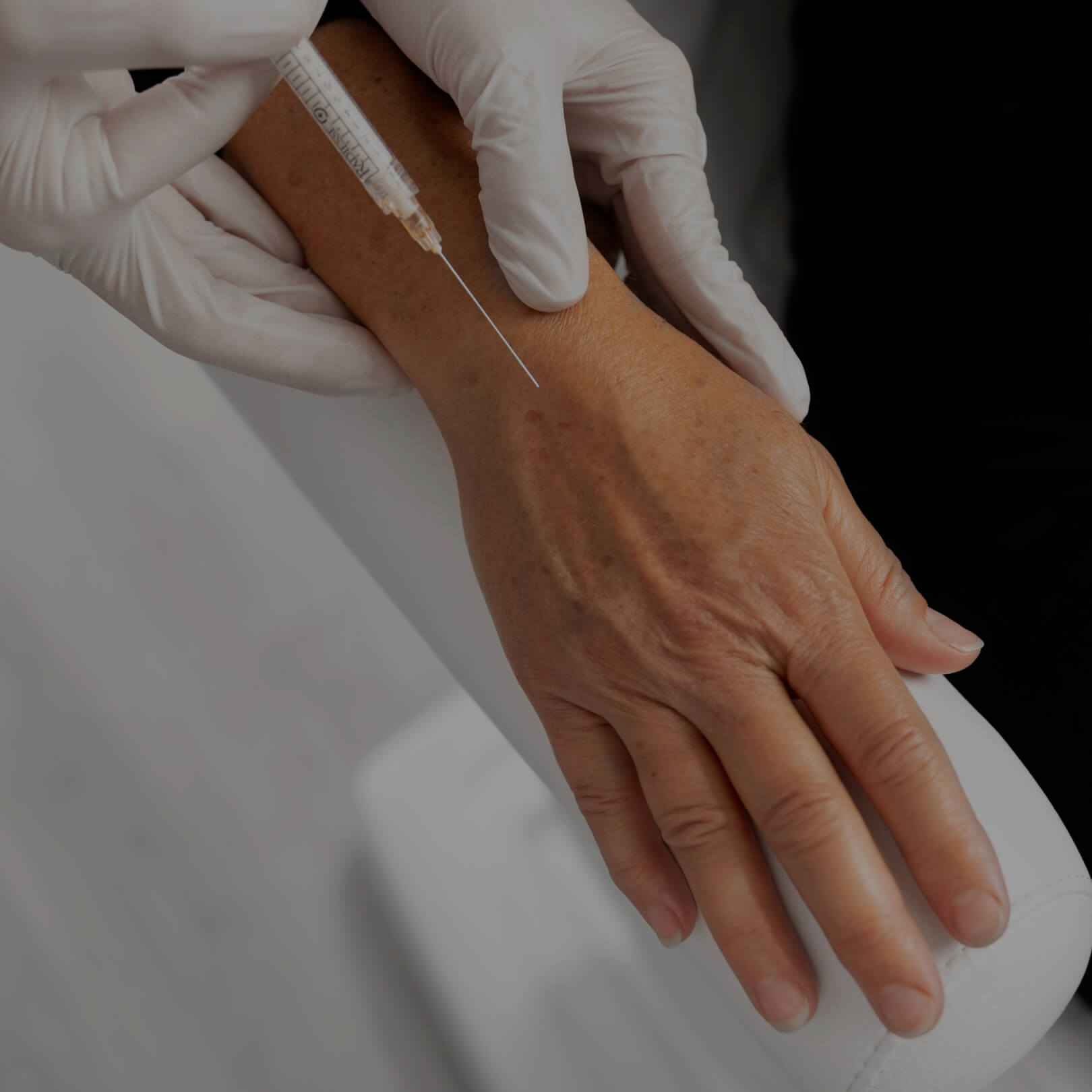 A patient at Clinique Chloé receiving dermal filler injections in their right hand for hand rejuvenation