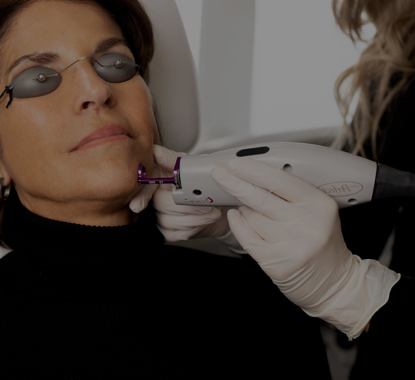A female patient at Clinique Chloé getting treated on the face with the Vbeam laser