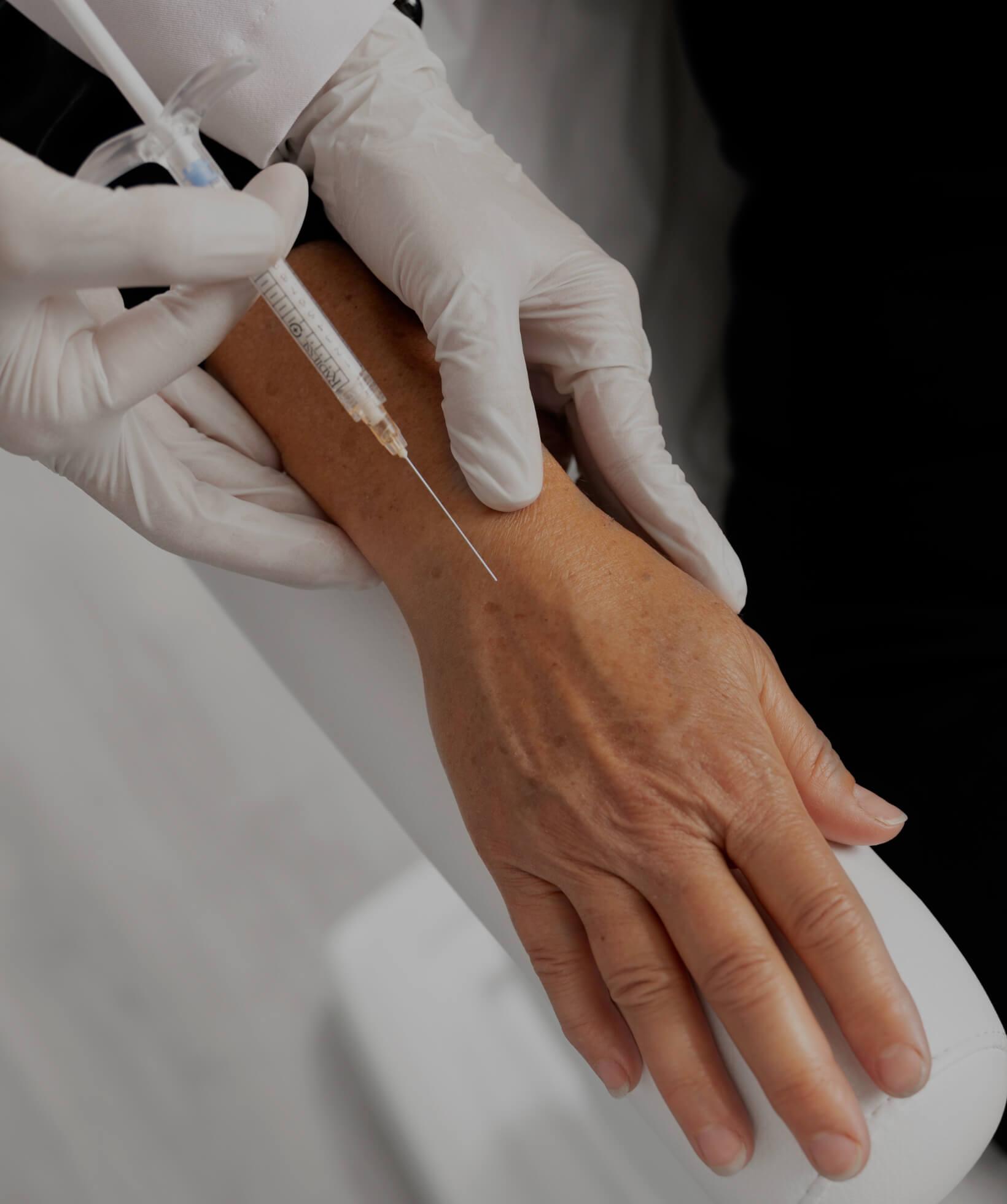 Un médecin de la Clinique Chloé pratiquant des injections de Radiesse dans les mains d'une patiente