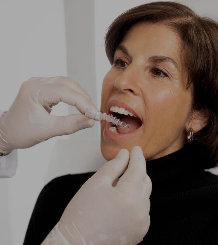 Le dentiste de la Clinique Chloé installant les gouttières remplies d'agent de blanchiment dentaire dans la bouche d'une patiente