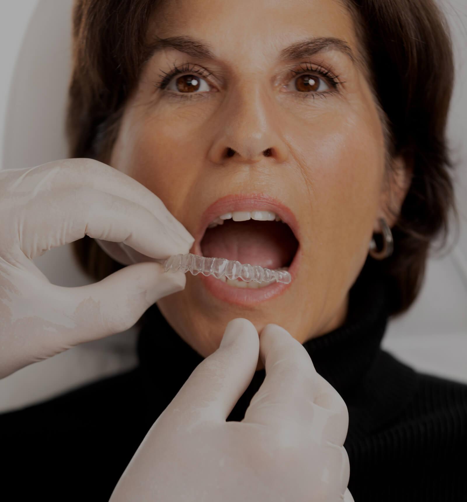 Le dentiste de la Clinique Chloé installant un aligneur transparent Invisalign dans la bouche d'une patiente
