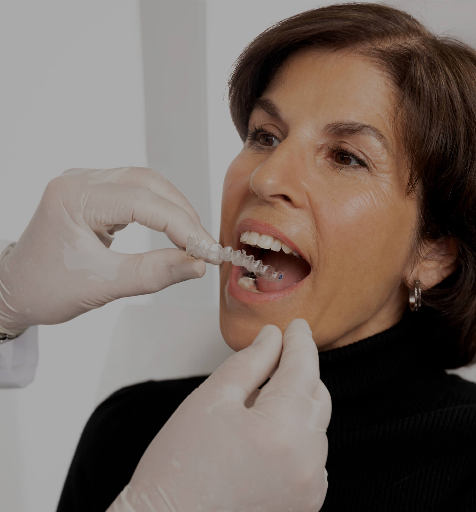 The dentist at Clinique Chloé installing the dental gutters filled with teeth whitening product in a female patient's mouth