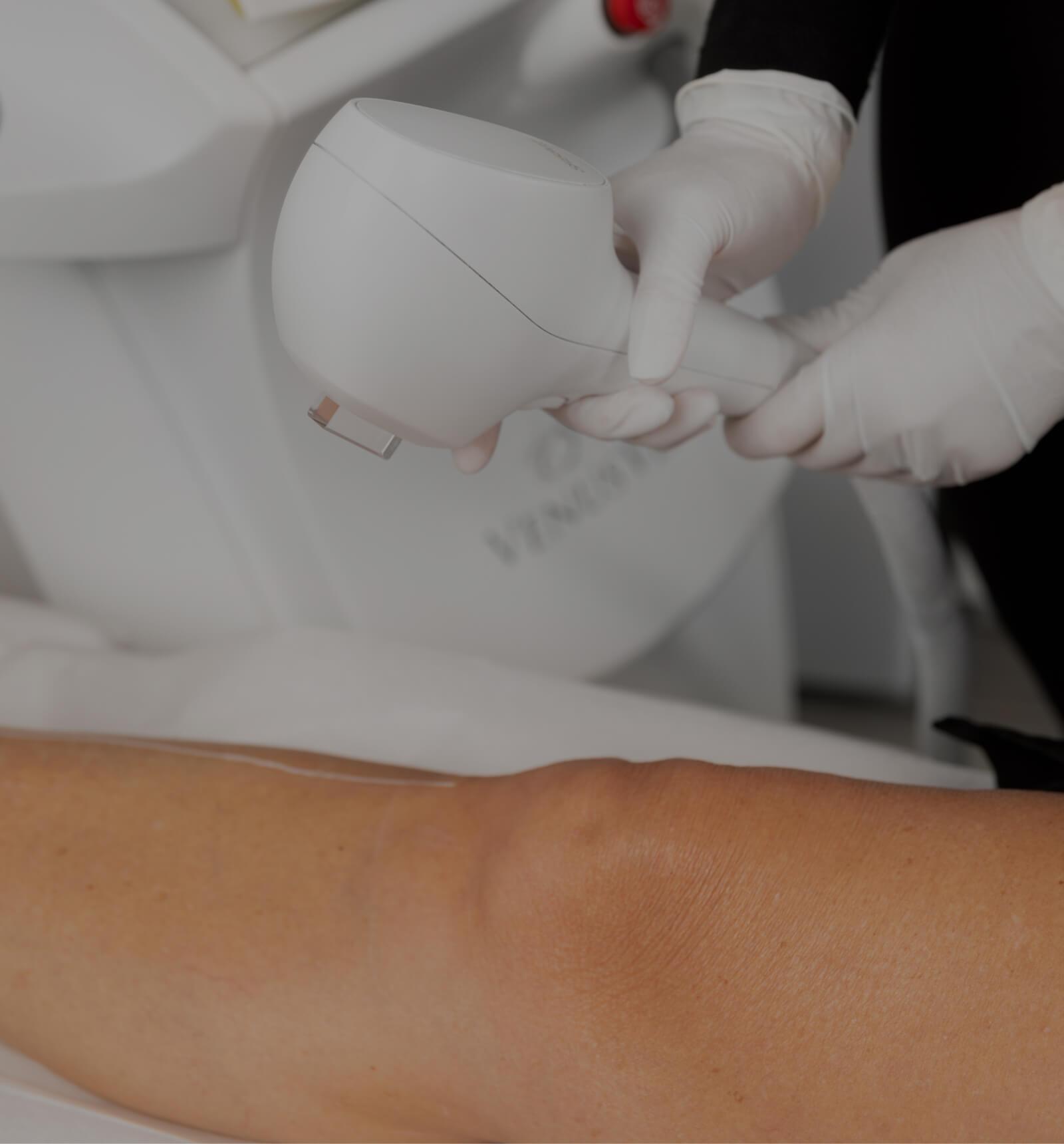 Une technicienne de la Clinique Chloé s'apprêtant à épiler la jambe d'une patiente de façon permanente avec un appareil IPL