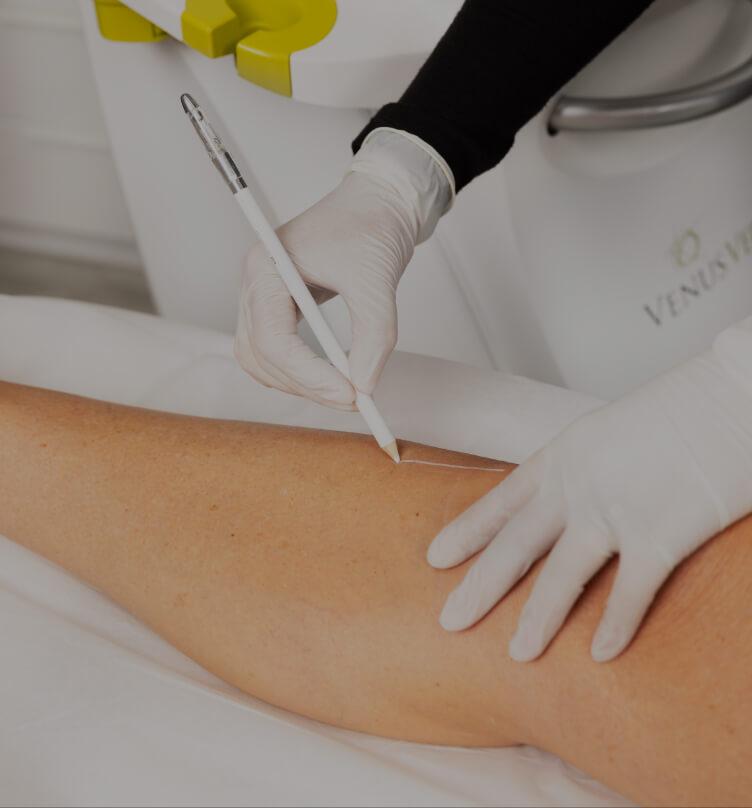 Une technicienne médico-esthétique de la Clinique Chloé délimitant la zone à traiter pour l'épilation permanente avec IPL