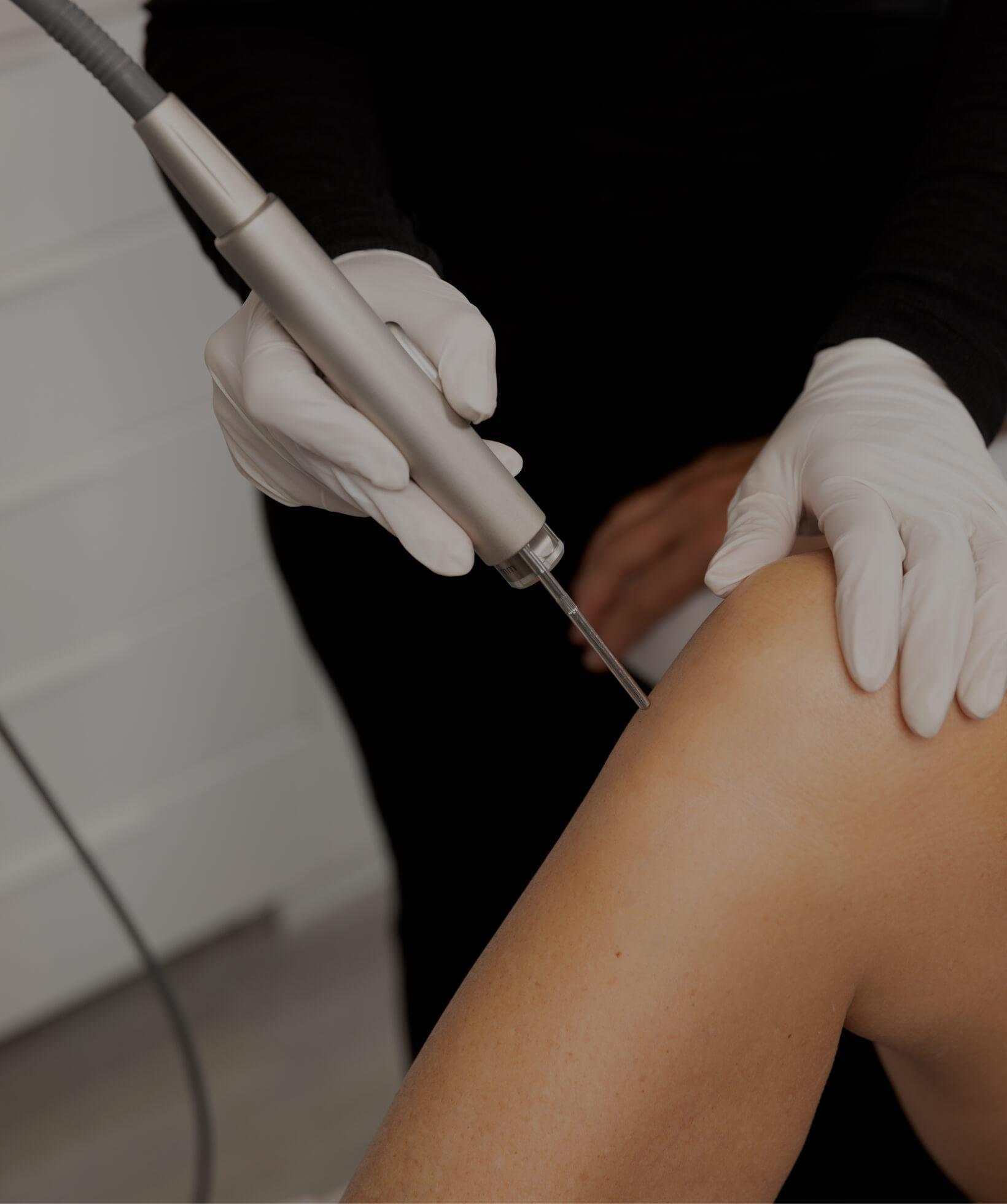 Une technicienne de la Clinique Chloé utilisant un laser pour l'épilation permanente des jambes d'une patiente