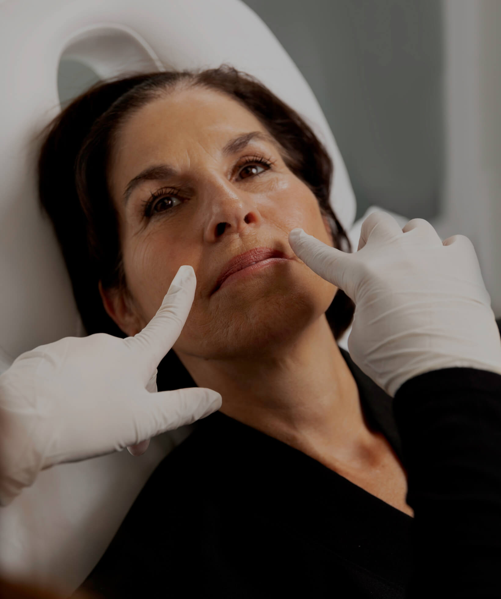 A medico-aesthetic technician from Clinique Chloé demonstrating the nasolabial folds of a female patient
