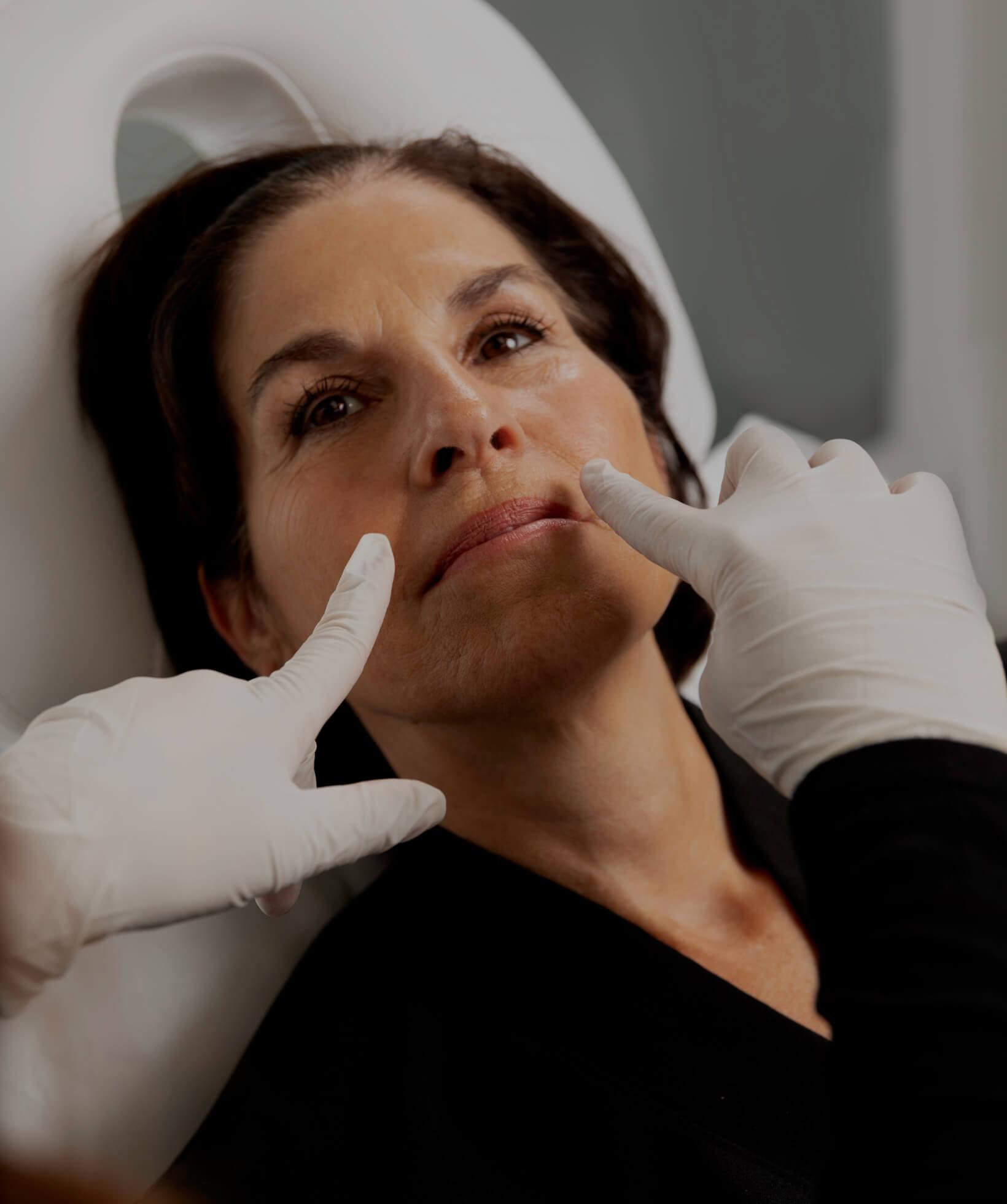Une technicienne médico-esthétique de la Clinique Chloé démontrant les sillons nasogéniens d'une patiente