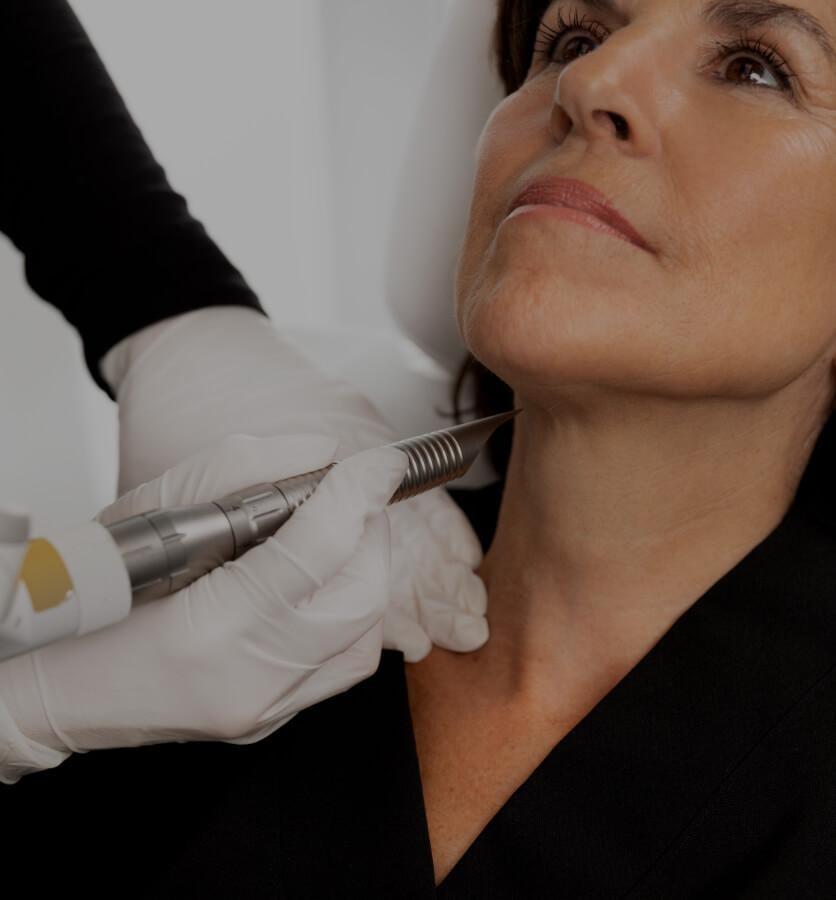 Une technicienne médico-esthétique de la Clinique Chloé traitant le cou d'une patiente avec le laser Fotona 4D