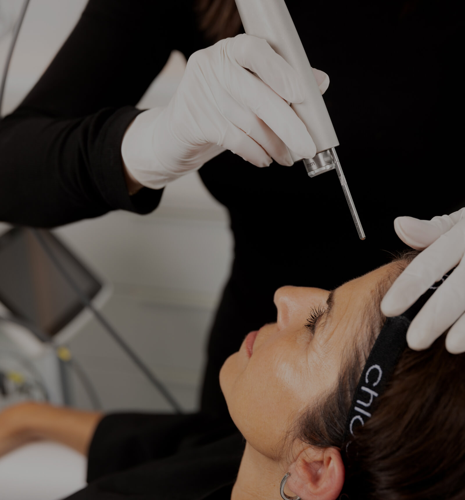 A medico-aesthetic technician from Clinique Chloé treating a patient's forehead with the Fotona Acne laser