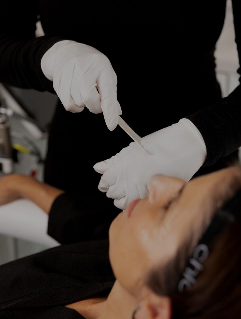 Une technicienne de la Clinique Chloé appliquant de la crème anesthésiante sur le visage d'une patiente