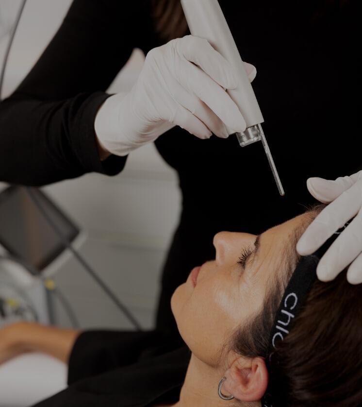 Une technicienne médico-esthétique de la Clinique Chloé traitant le front d'une patiente avec le laser Fotona Acné