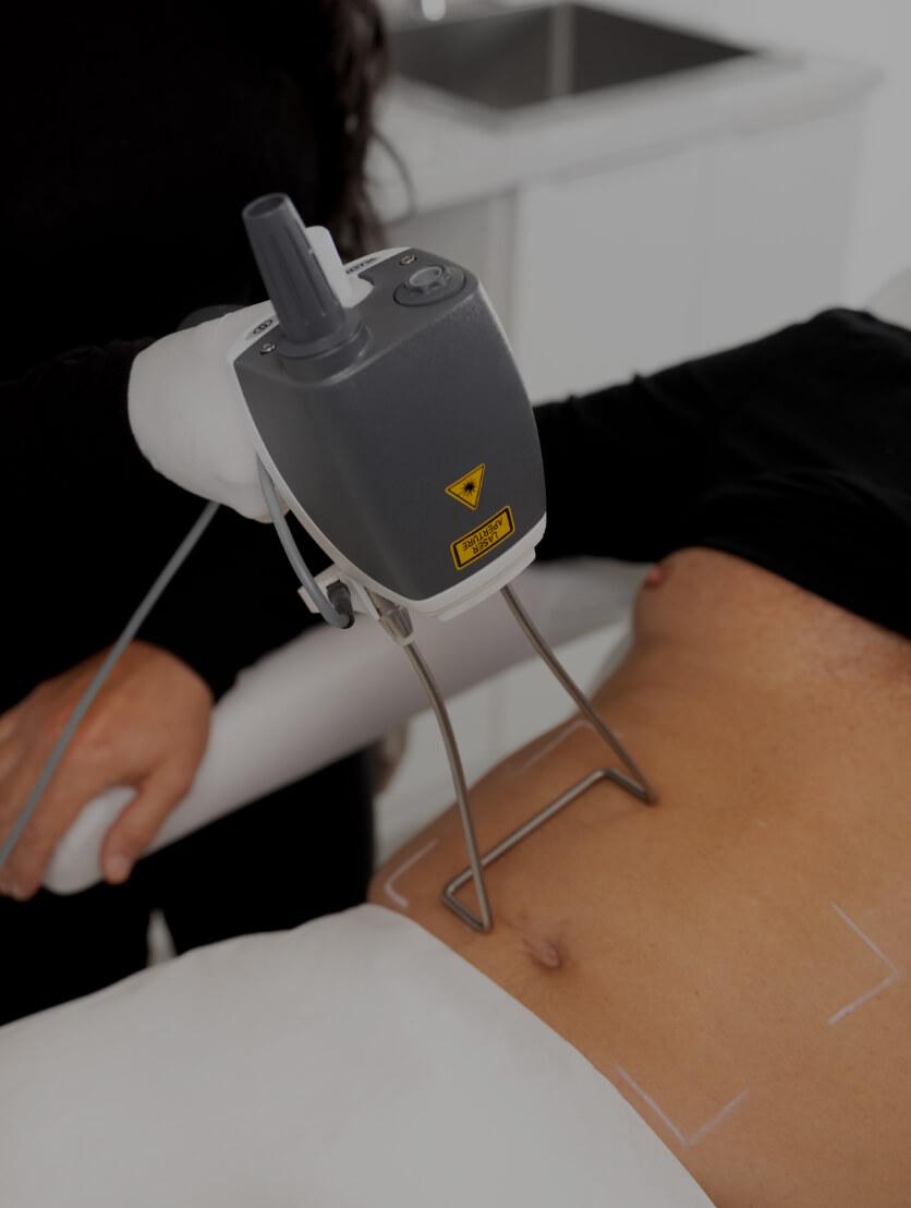 Une technicienne médico-esthétique de la Clinique Chloé traitant l'abdomen d'un patient avec le laser Hot Sculpting