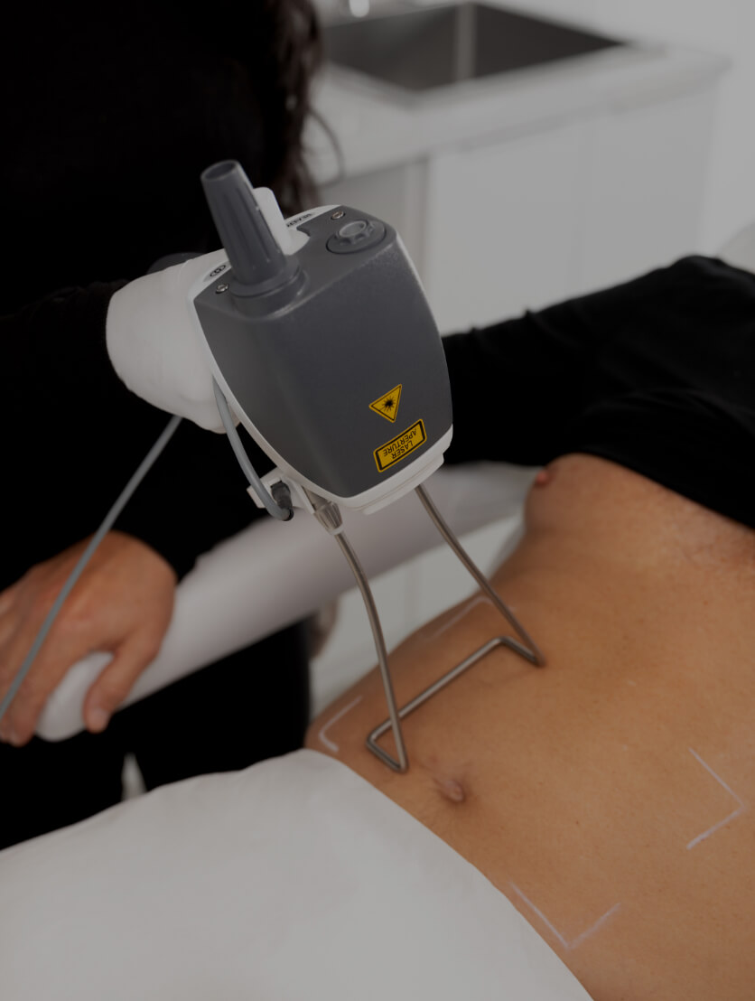 A medico-aesthetic technician from Clinique Chloé treating the abdomen of a patient with the Hot Sculpting laser