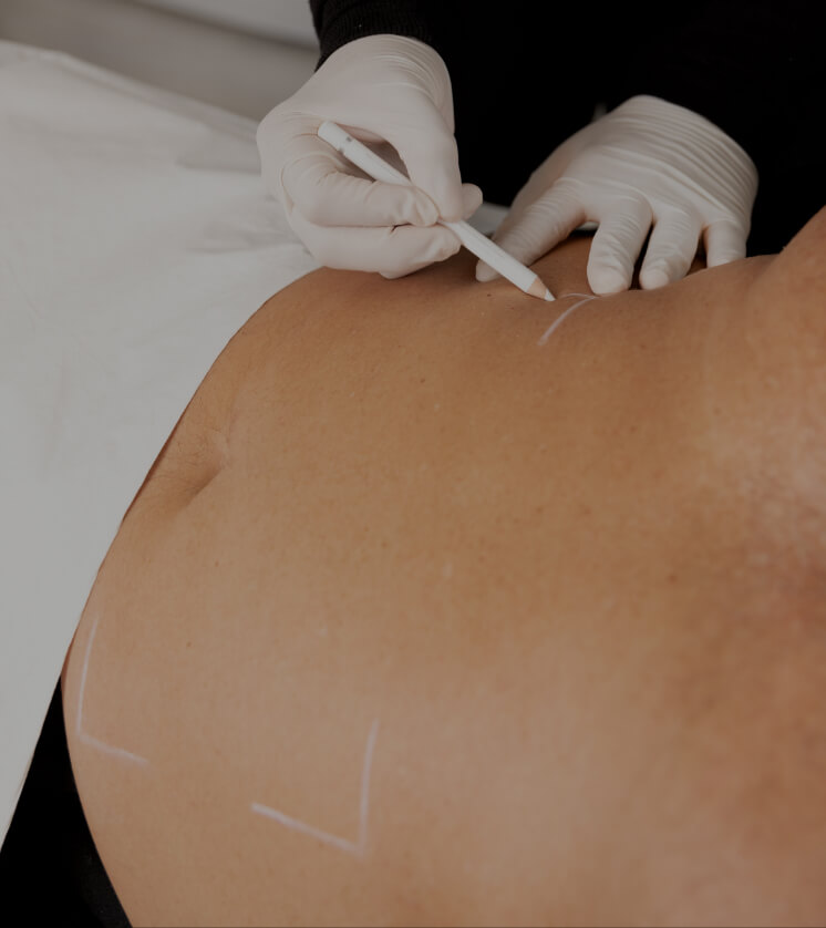 A Clinique Chloé technician using a white pencil to mark the area to be treated on a patient's abdomen