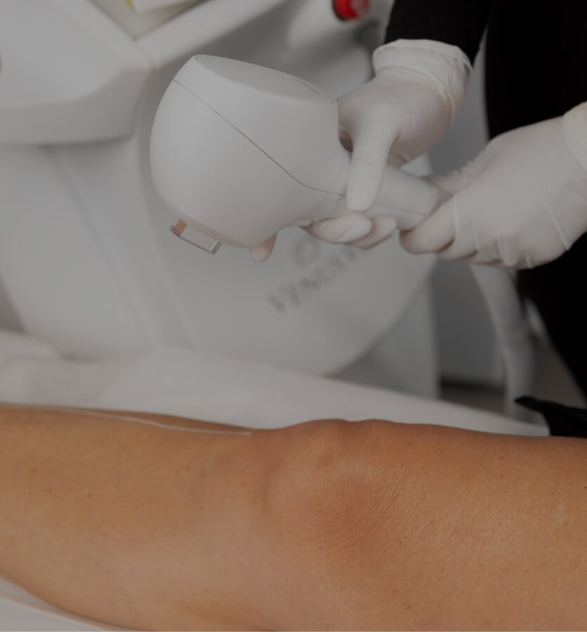 A medical aesthetic technician from Clinique Chloé preparing to perform permanent IPL hair removal on a patient's leg