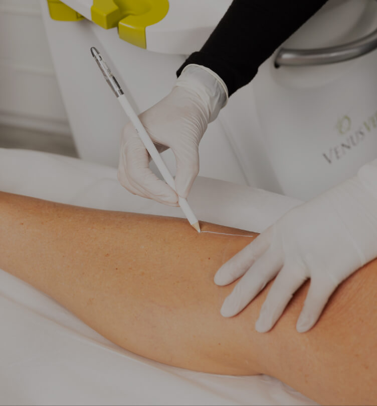 A Clinique Chloé technician delimiting the area to be treated for permanent hair removal with IPL on a woman's leg