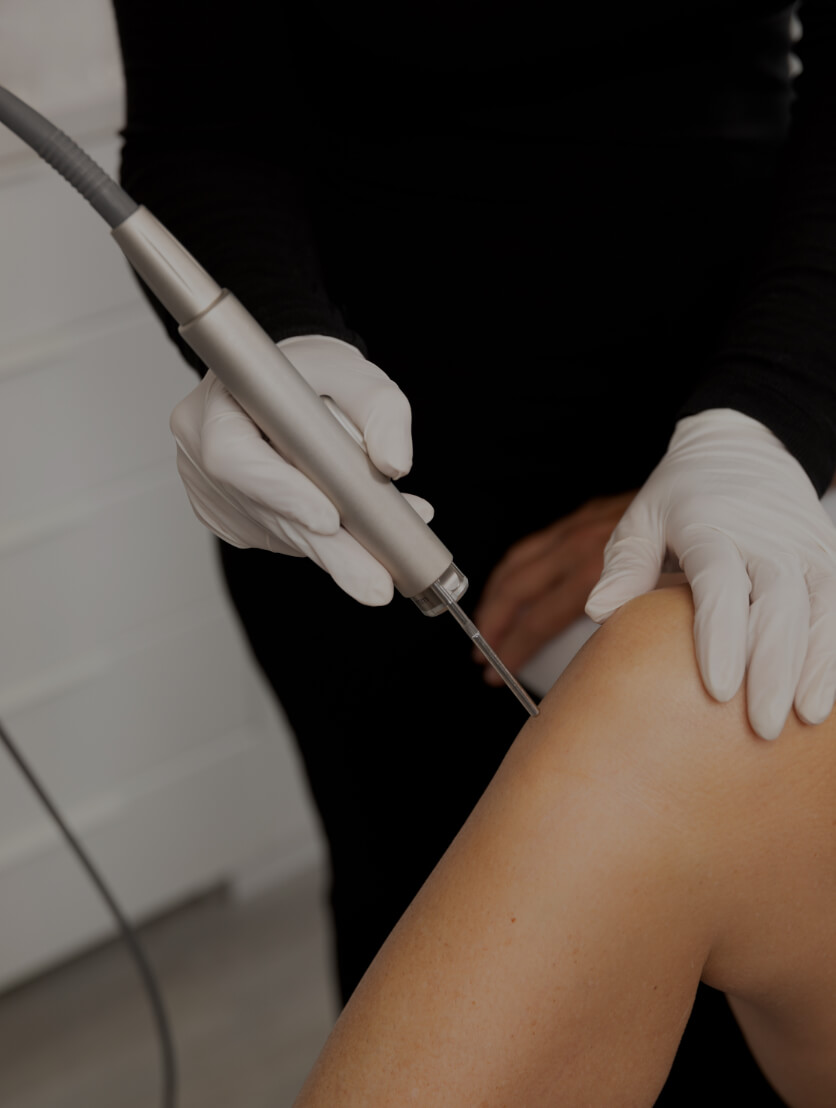 A medical aesthetic technician from Clinique Chloé using a laser for permanent hair removal on a patient's legs