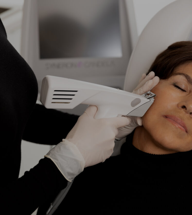 Une infirmière de la Clinique Chloé traitant une patiente avec l'appareil de microneedling avec radiofréquence Profound