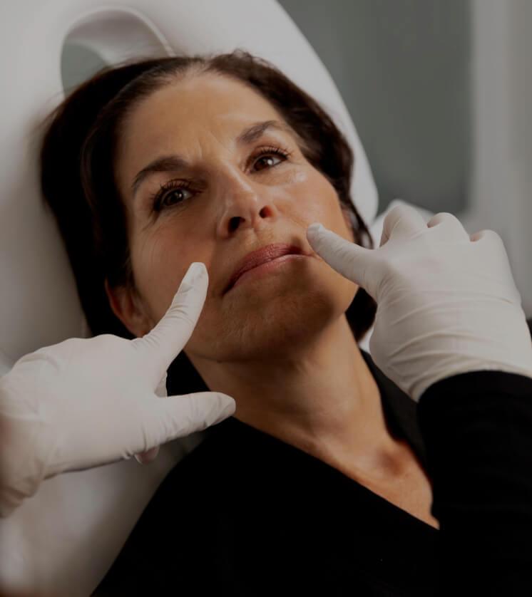 Une technicienne de la Clinique Chloé montrant les rides naso-labiales d'une patiente avec ses deux doigts