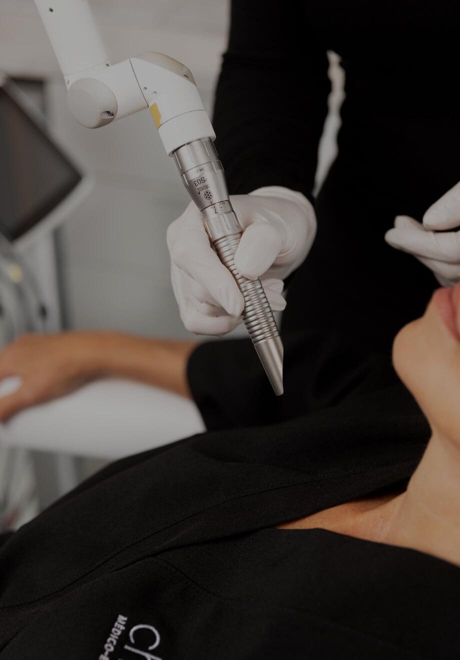 Une technicienne de la Clinique Chloé tenant la pièce à main du laser TightScupting près du cou d'une patiente