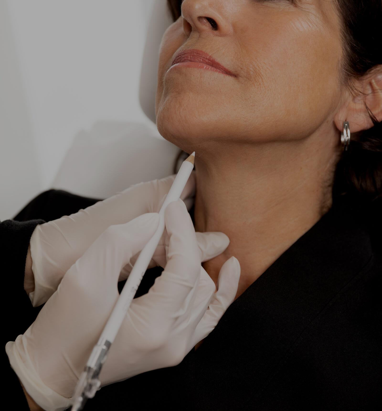 Une technicienne de la Clinique Chloé délimitant la zone à traiter avec le laser TightSculpting dans le cou d'une patiente