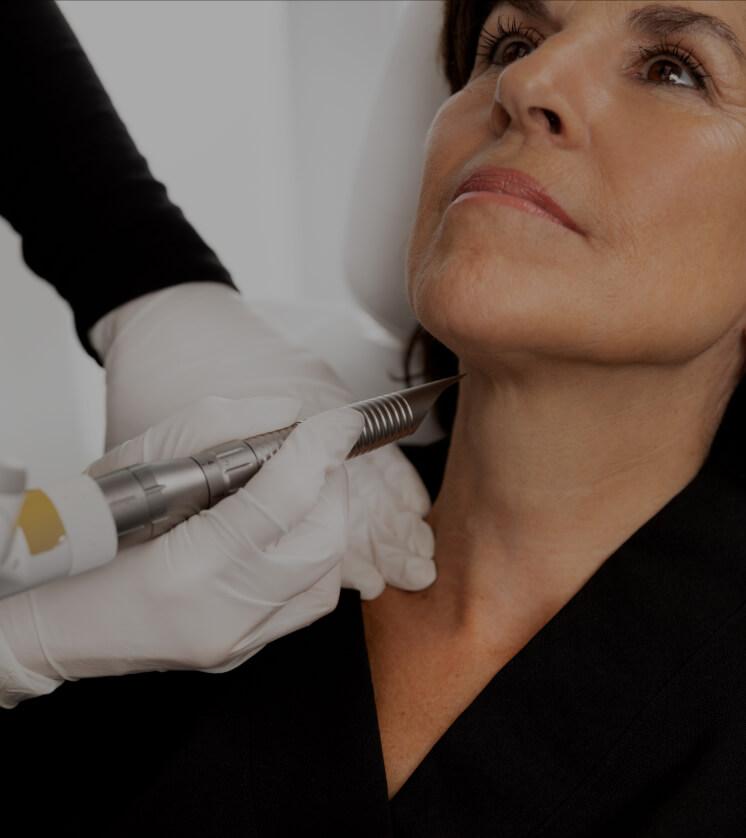Une technicienne médico-esthétique de la Clinique Chloé traitant le cou d'une patiente avec le laser TightSculpting