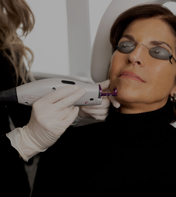 A medical aesthetic technician from Clinique Chloé treating vascular lesions with the Vbeam laser on a patient's face