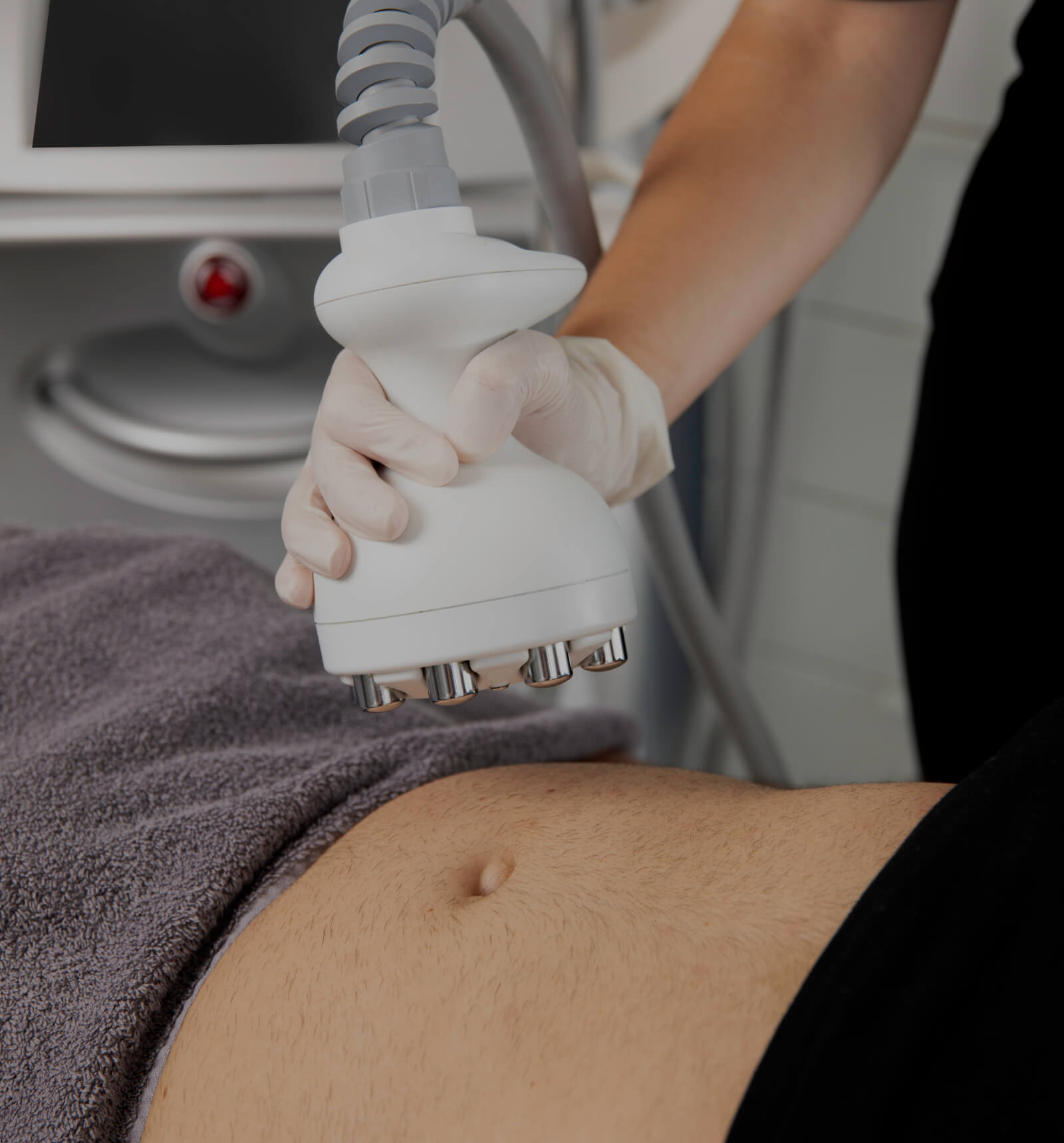 A medical aesthetic technician from Clinique Chloé holding the Venus Legacy handpiece above a patient's abdomen
