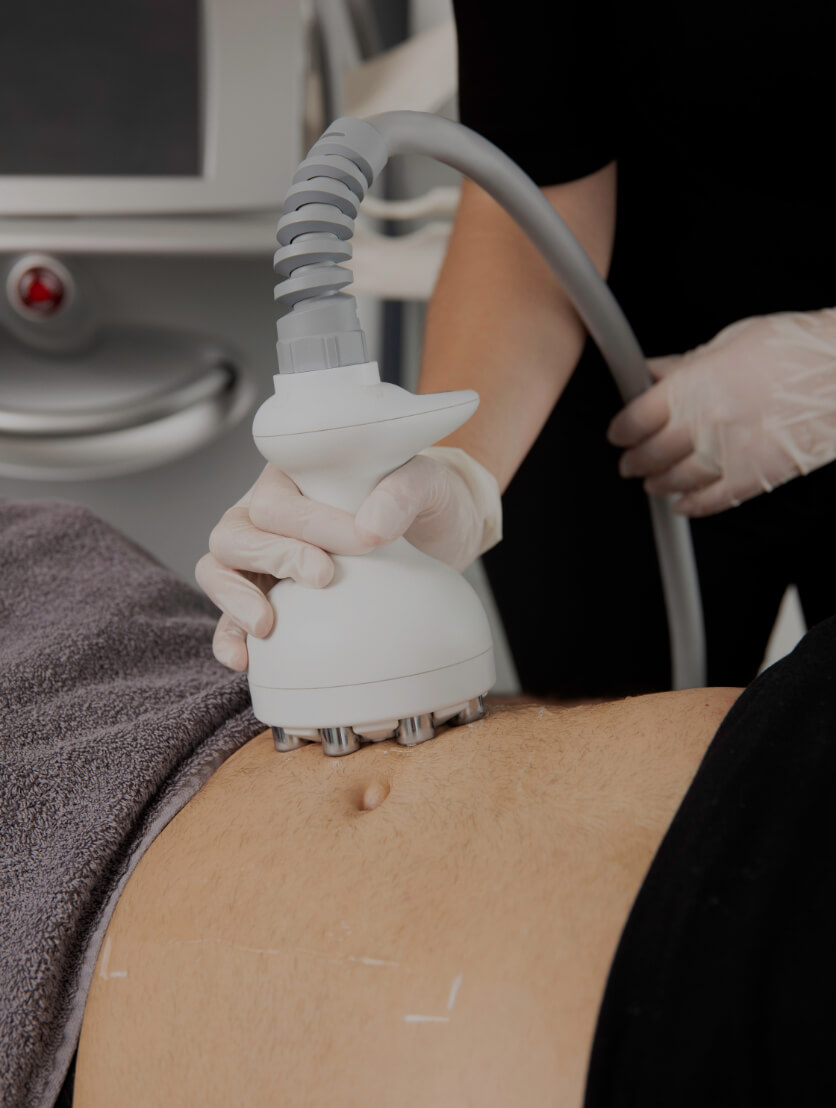 A technician from Clinique Chloé sliding the Venus Legacy radiofrequency handpiece onto a patient's abdomen
