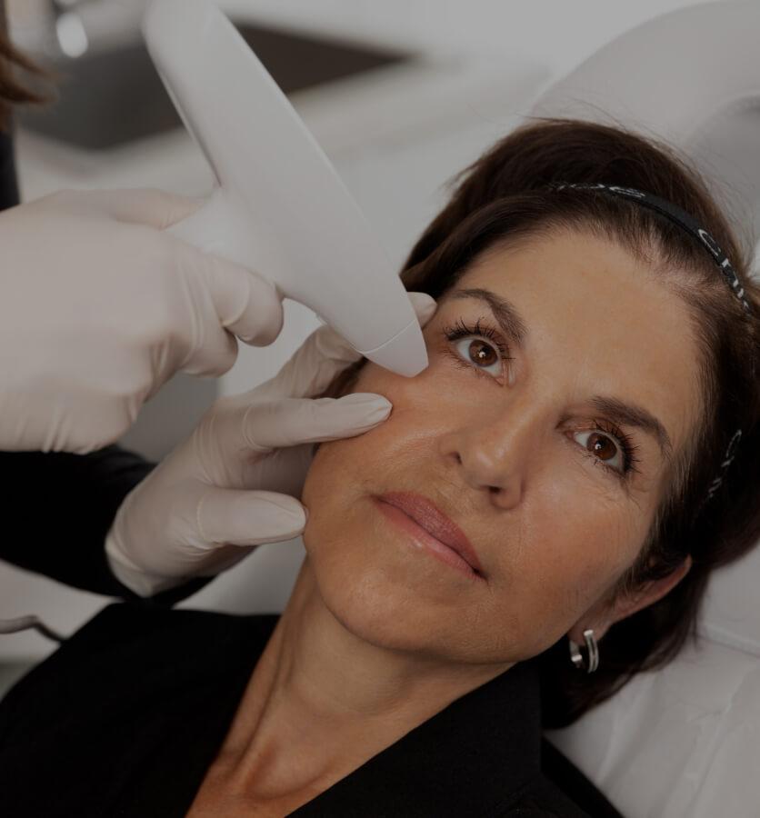 Une patiente de la Clinique Chloé recevant un traitement de radiofréquence fractionnée Venus Viva
