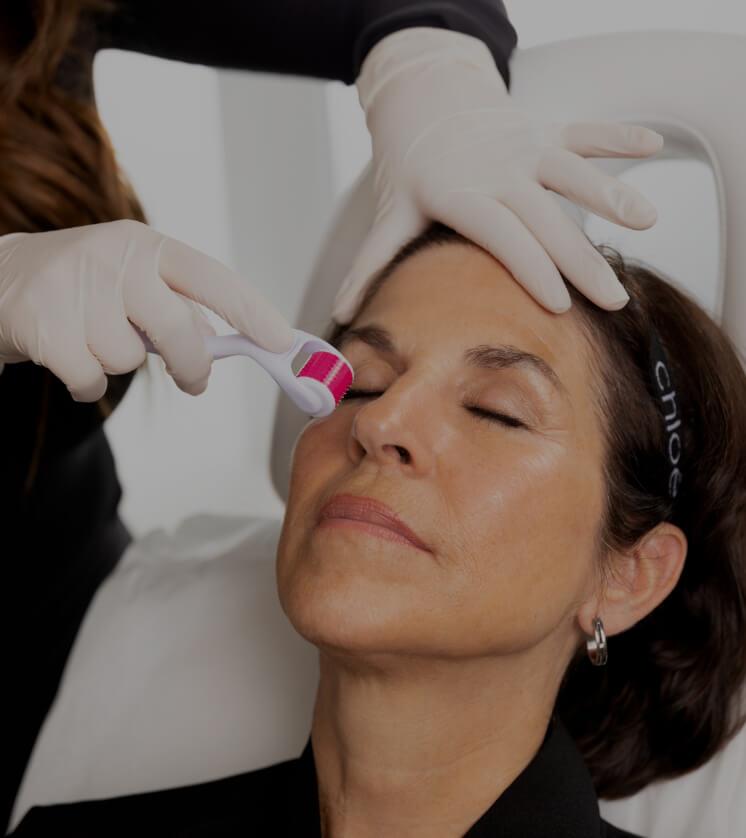 Une technicienne médico-esthétique de la Clinique Chloé pratiquant un traitement de microneedling sur une patiente
