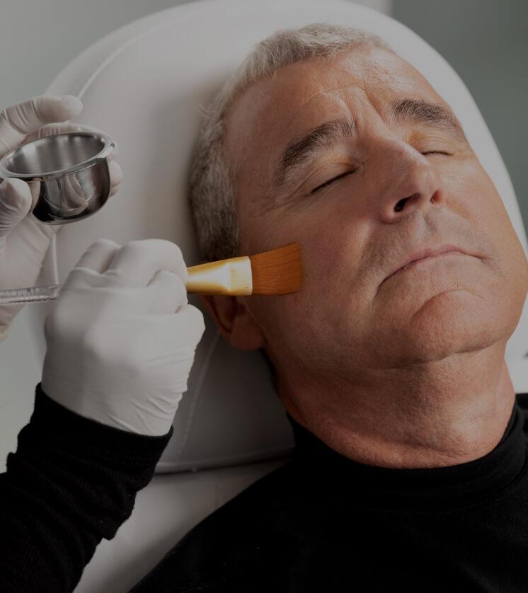 Une technicienne de la Clinique Chloé appliquant un peeling chimique sur le visage d'un patient avec un pinceau