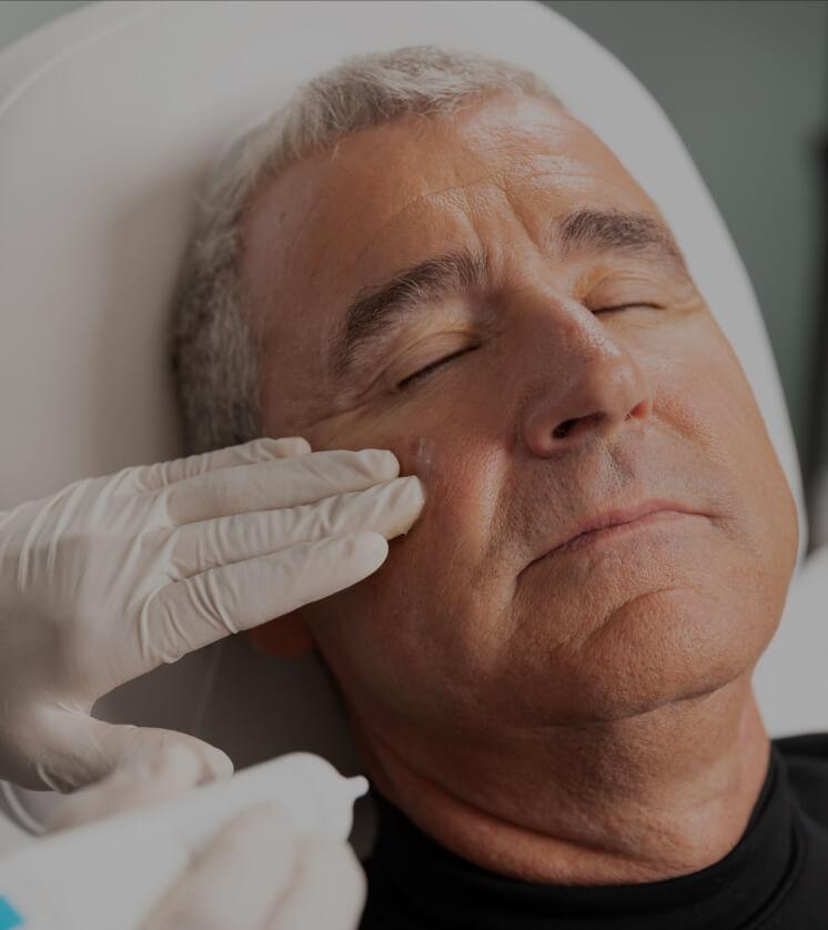 Une technicienne de la Clinique Chloé appliquant de la crème apaisante sur le visage d'un patient après un peeling chimique