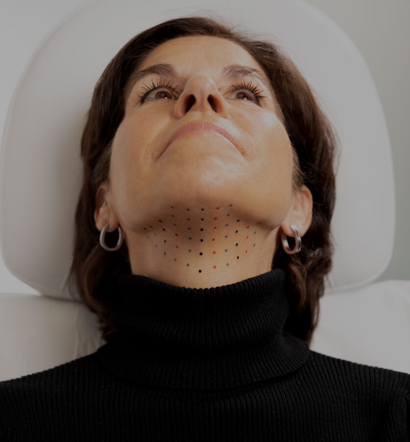 A patient from Clinique Chloé, chin up, showing the grid used on the chin during a Belkyra injection treatment