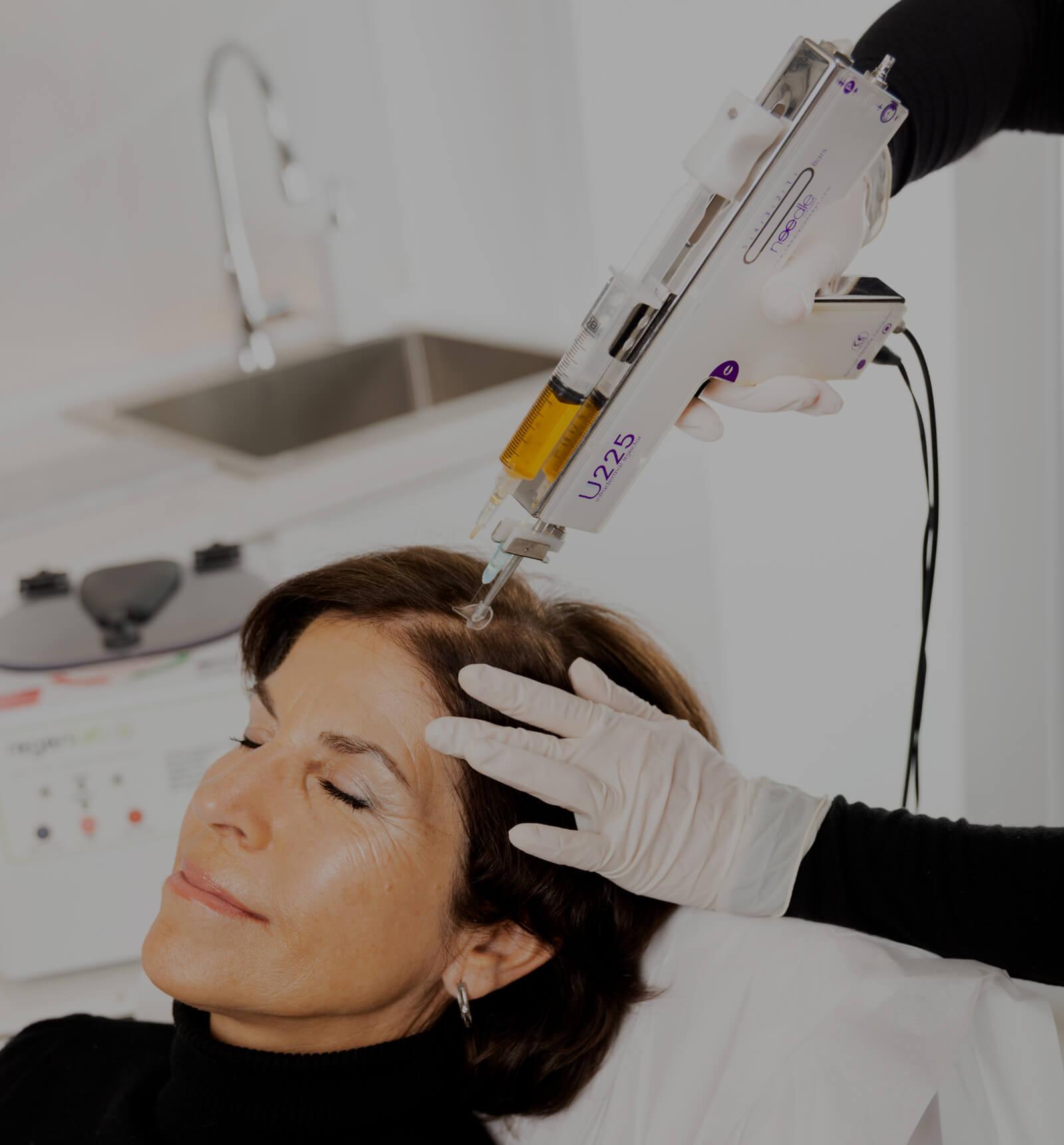 A nurse at Clinique Chloé performing a platelet-rich plasma treatment on a female patient's scalp