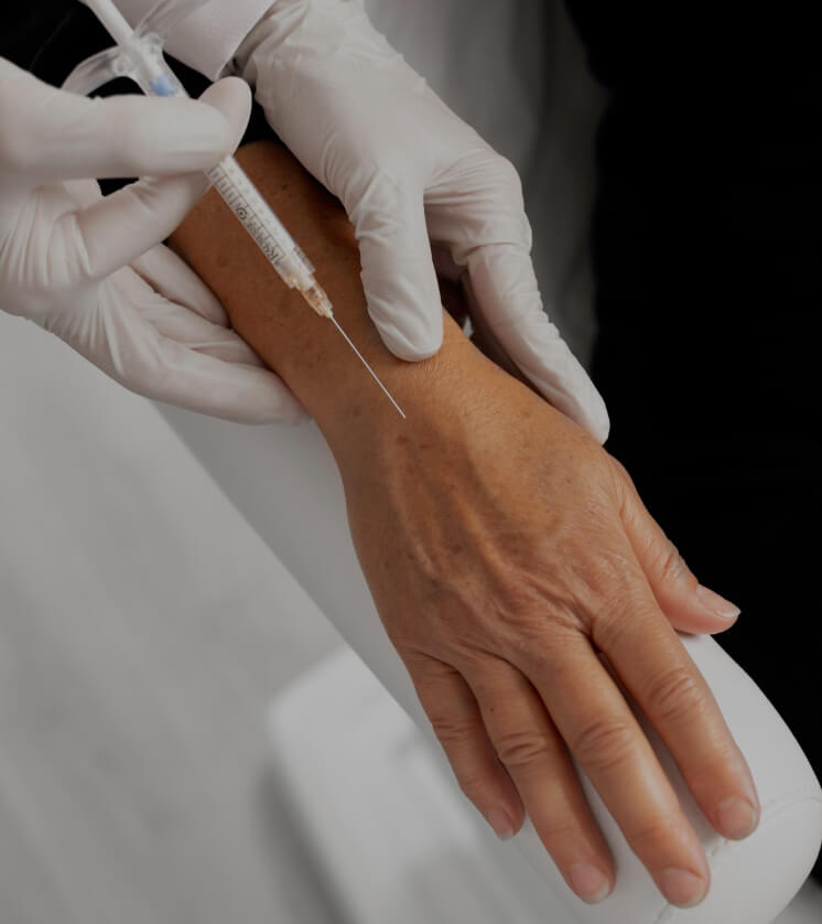 A doctor from Clinique Chloé doing Radiesse injections into the hands of a female patient