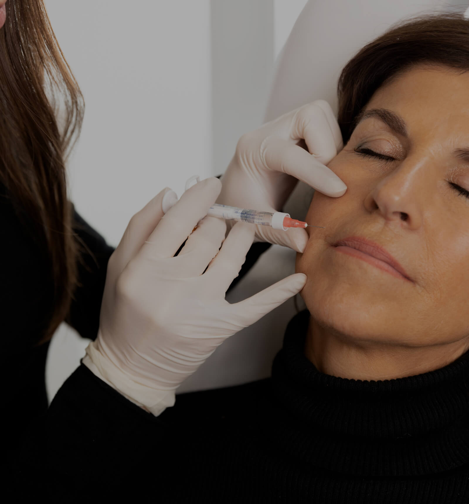 A doctor at Clinique Chloé doing Skinboosters injections into a patient's nasolabial folds