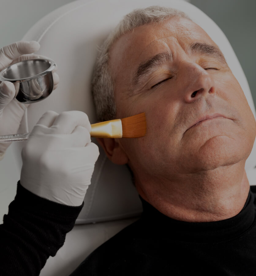 A technician from Clinique Chloé applying a chemical peel to a male patient's face with a brush