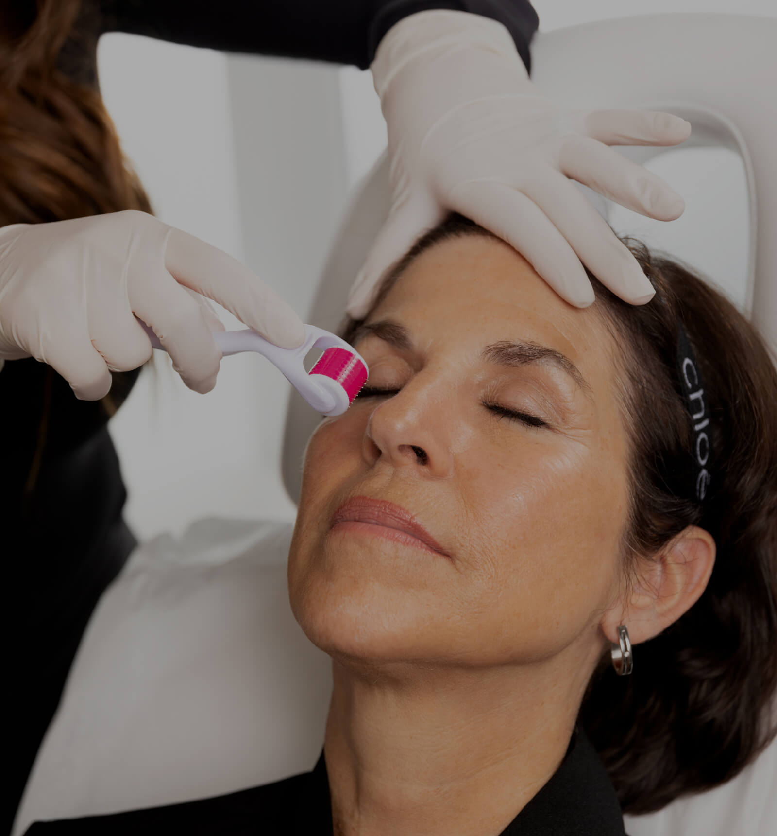 A medico-aesthetic technician from Clinique Chloé performing a microneedling treatment on a female patient
