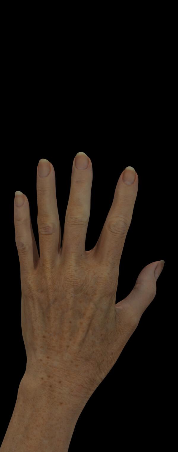 Clinique Chloé female patient with aging hands
