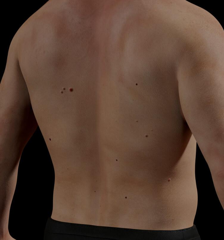 Patient de la Clinique Chloé avec des angiomes rubis sur la peau de son corps