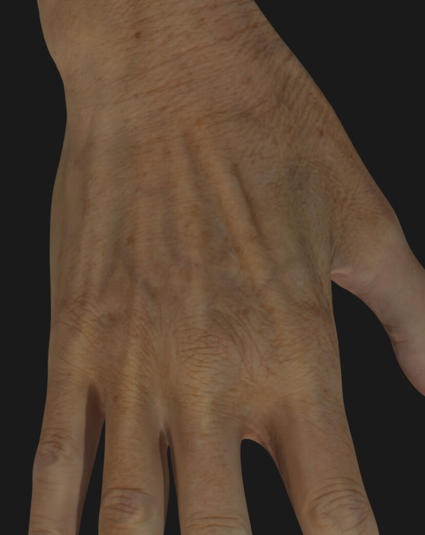 Clinique Chloé female patient's aging hand to be treated with dermal filler injections