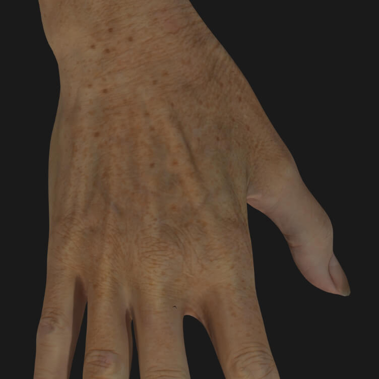 Aging hands of a Clinique Chloé patient to be treated with IPL photorejuvenation