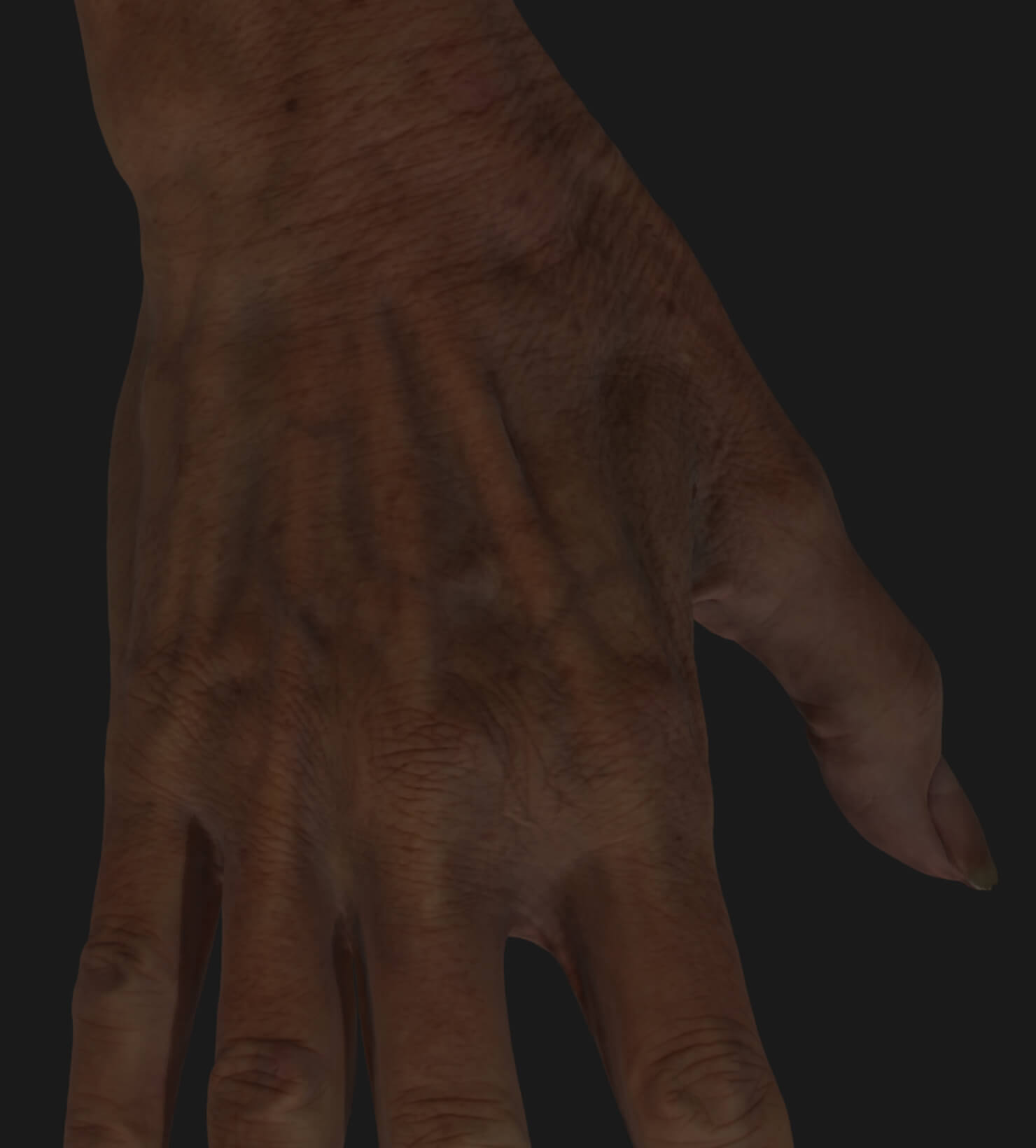 Clinique Chloé female patient's aging hand to be treated with Radiesse injections