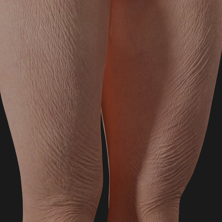 Thighs of a Clinique Chloé female patient showing skin laxity to be treated with Sculptra injections for skin tightening