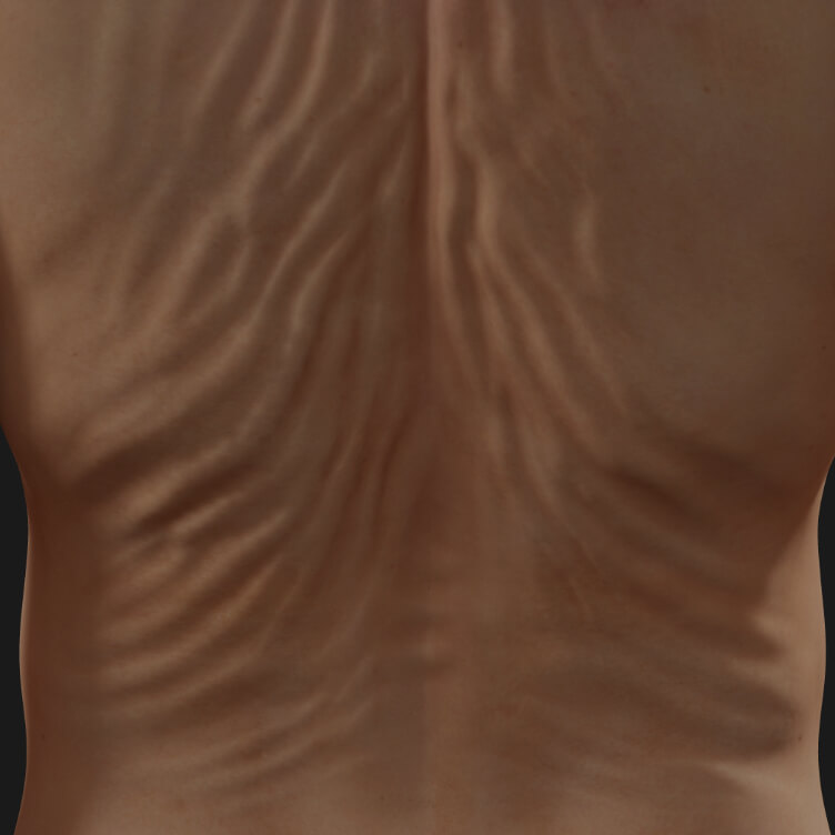 Back of a Clinique Chloé patient showing skin laxity to be treated with Venus Legacy radiofrequency skin tightening