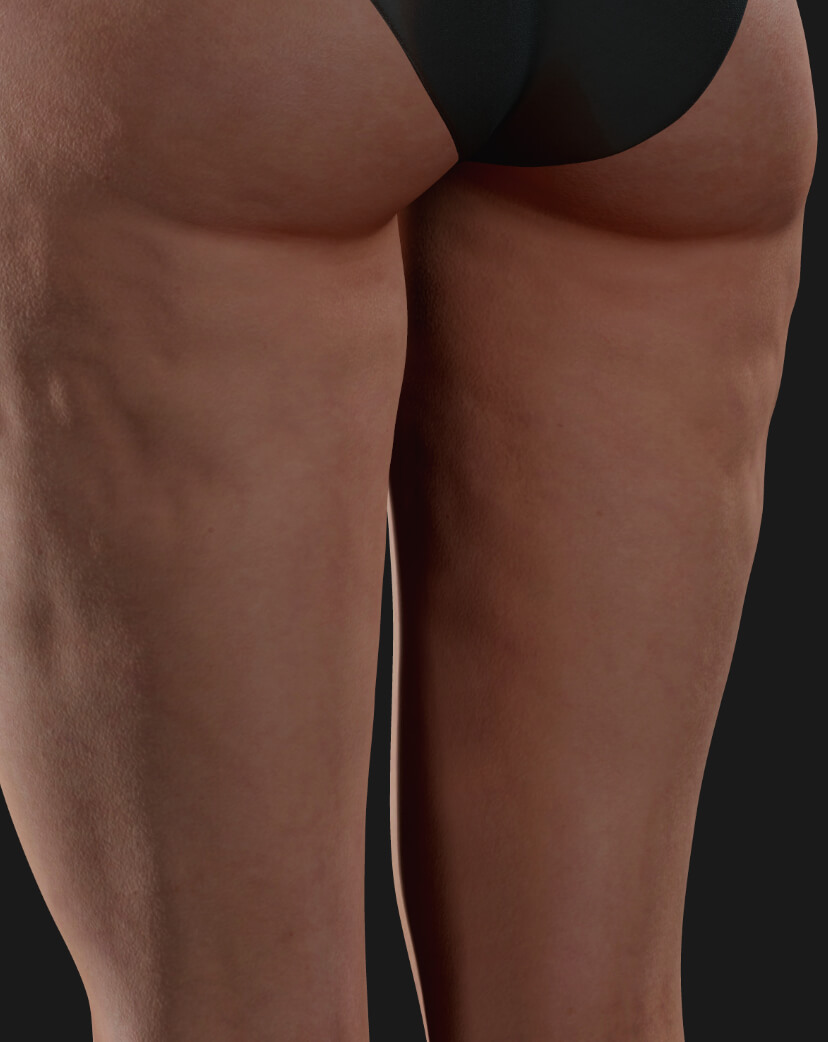 Thighs of a Clinique Chloé female patient showing cellulite, to be treated with Profound RF for cellulite reduction