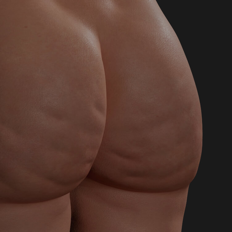 Buttocks of a Clinique Chloé female patient showing cellulite to be treated with Sculptra injections for cellulite reduction